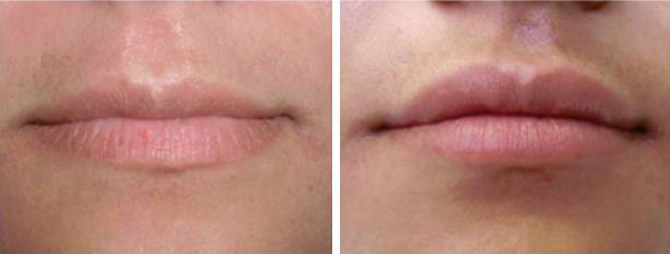 juvederm, lips, cupid's bow, denver, before and after