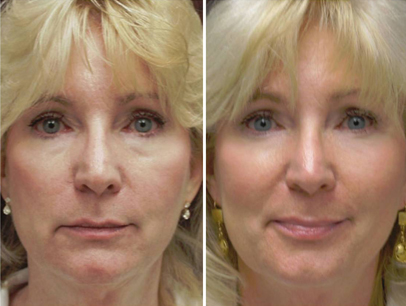 sculptra, volume, cheeks, chin, denver