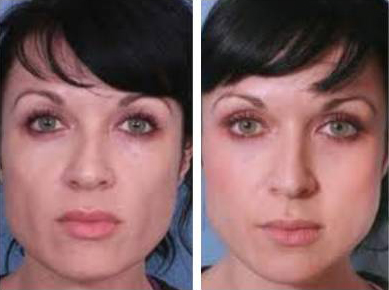 sculptra, liquid face lift, denver