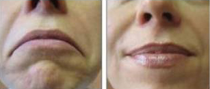 botox, DOAs, before and after, denver