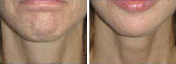 dimpling chin, before and after, denver
