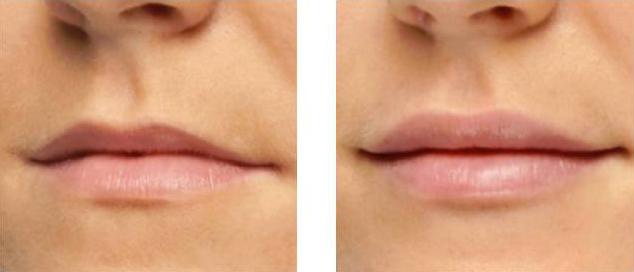 restylane, lips, denver