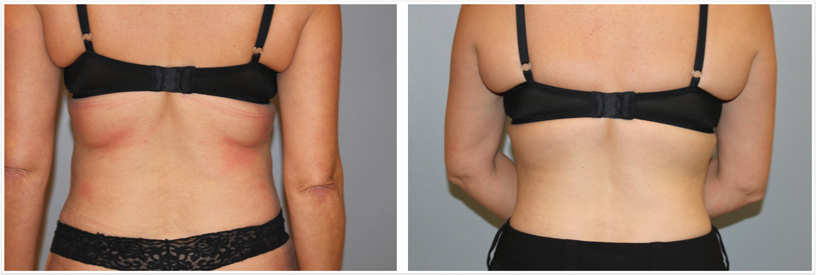 CoolSculpting back, bra fat, before and after
