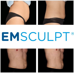 emsculpt results denver colorado