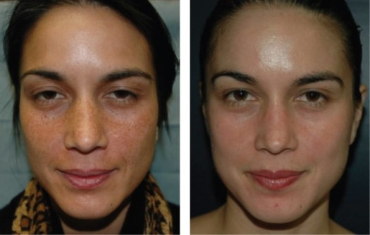 VI Chemical Peel before and after photographs in Denver