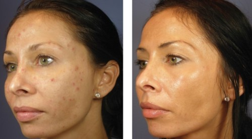 VI Chemical Peel before and after pictures in Denver Colorado