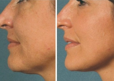 VI Chemical Peel before and after in Denver