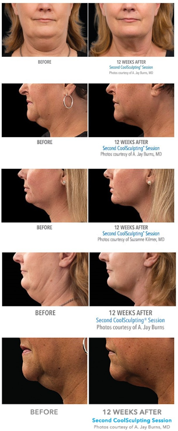 coolsculpting chin, denver co