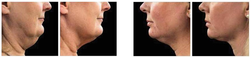 coolsculpting chin neck before after