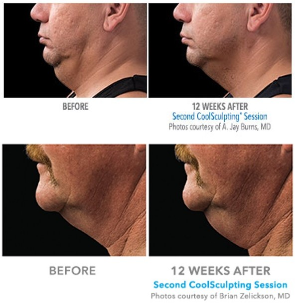 men coolsculpting chin, denver