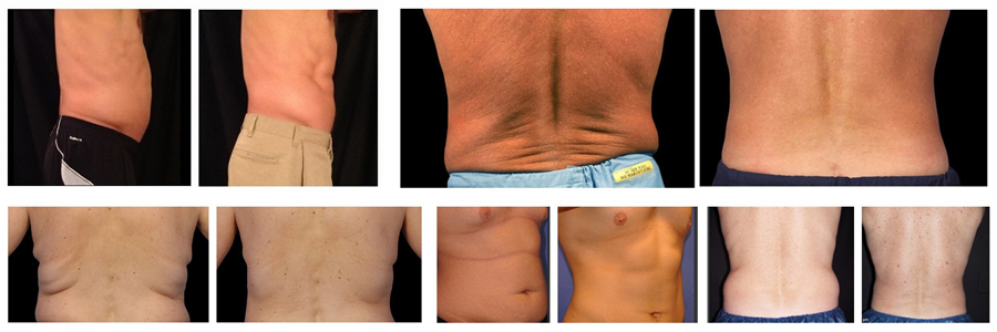 men denver colorado coolsculpting