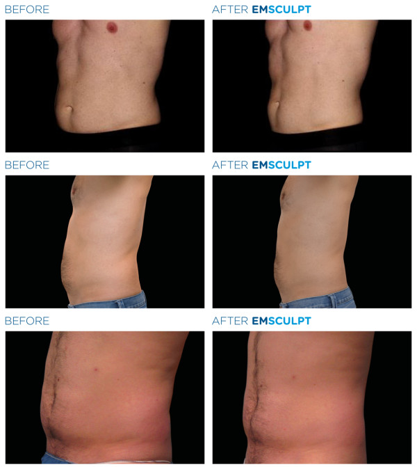 EMSCULPT® for Men in Denver, Colorado | Injector 5280