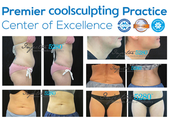 injector-5280-coolsculpting-denver-colorado