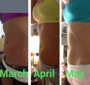 coolsculpting results realself